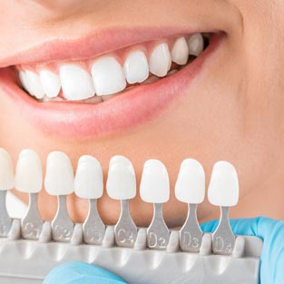 Photo of cosmetic dentistry teeth whitening