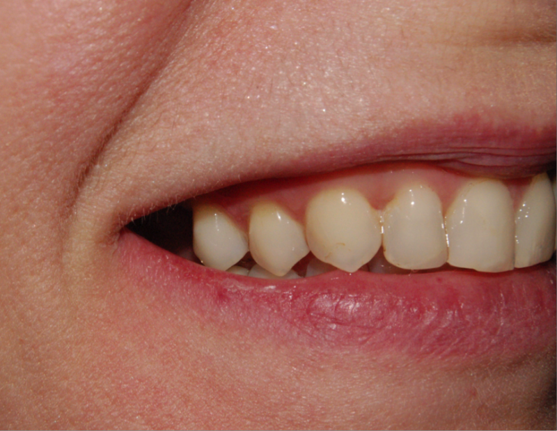 Finished photo of a dental implant